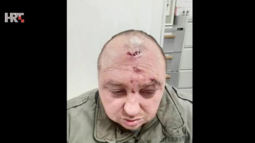 Ispovijest vlasnika kafića kojeg su pretukli Romi: Jedan me boksao, a drugi pogodio u čelo