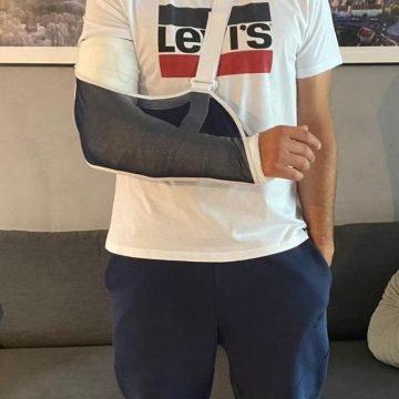 Kako će sad udarati pečate: Ministar Aladrović slomio ruku